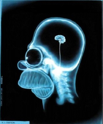 Facebook Funny Pictures Homer had a CAT scan